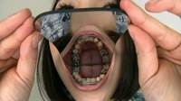 Nana's teeth inspection : Dental braces