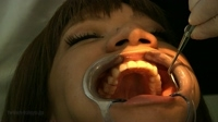 Tooth Treatment 01